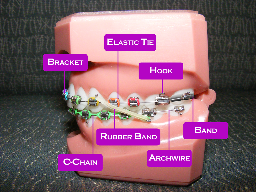 rubber bands braces diagram kenwood wiring  top concord orthodontics