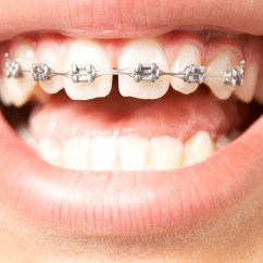 Rubber Bands Braces Diagram 1988 Ezgo Marathon Wiring Treatment Options  Top Concord Orthodontics