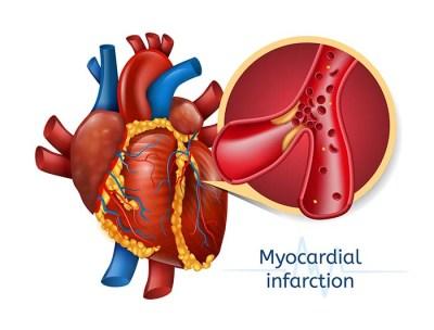 Myocardial Disease in Dogs