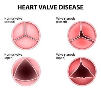 Valvular Disease in Dogs