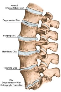 Symptoms of Slipped Disc in Dogs