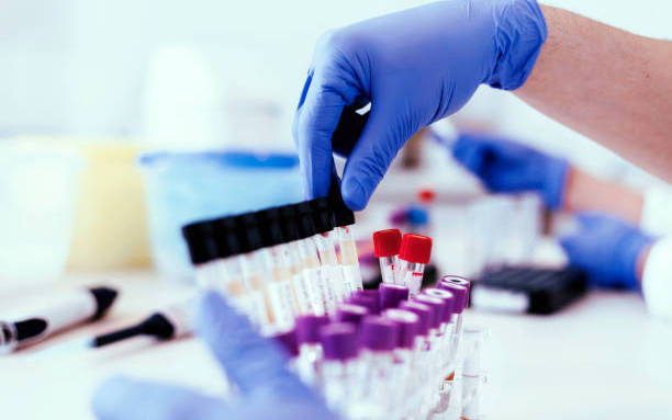 Things to Know before You Go for a Drug Test | Don't be Suprised!