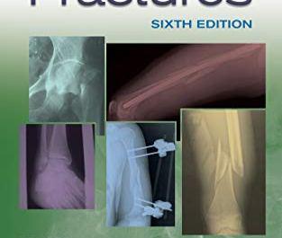 Handbook of fractures pdf