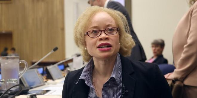 Killing of people with albinism increased during COVID-19, says UN expert