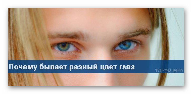 Почему бывает разный цвет глаз