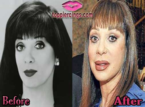 Adrien Arpel Plastic Surgery – Top Piercings