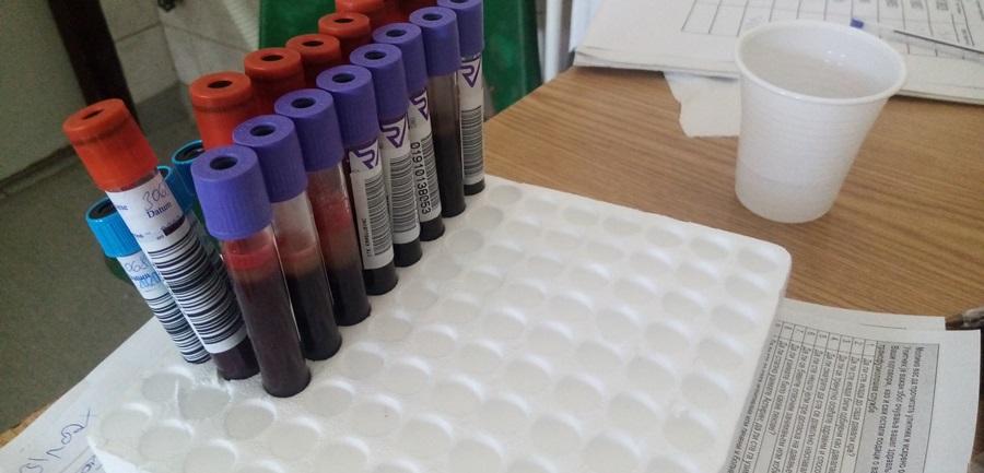 Акција добровољног давања крви сутра у Тополи