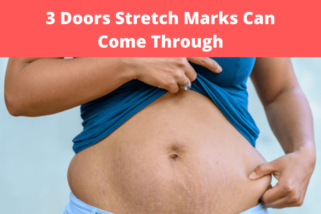 3 Doors Stretch Marks Can Come Through