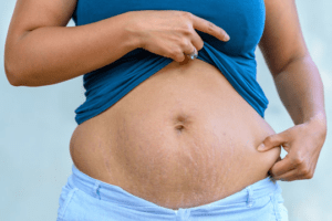 women stretch mark