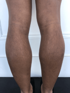 Body Growth In Teenage Period