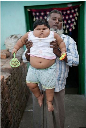 Fattest Baby In The World : fattest, world, Fattest, World?, (Photos)