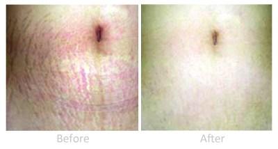 Dermaroller treatment for stretch marks: