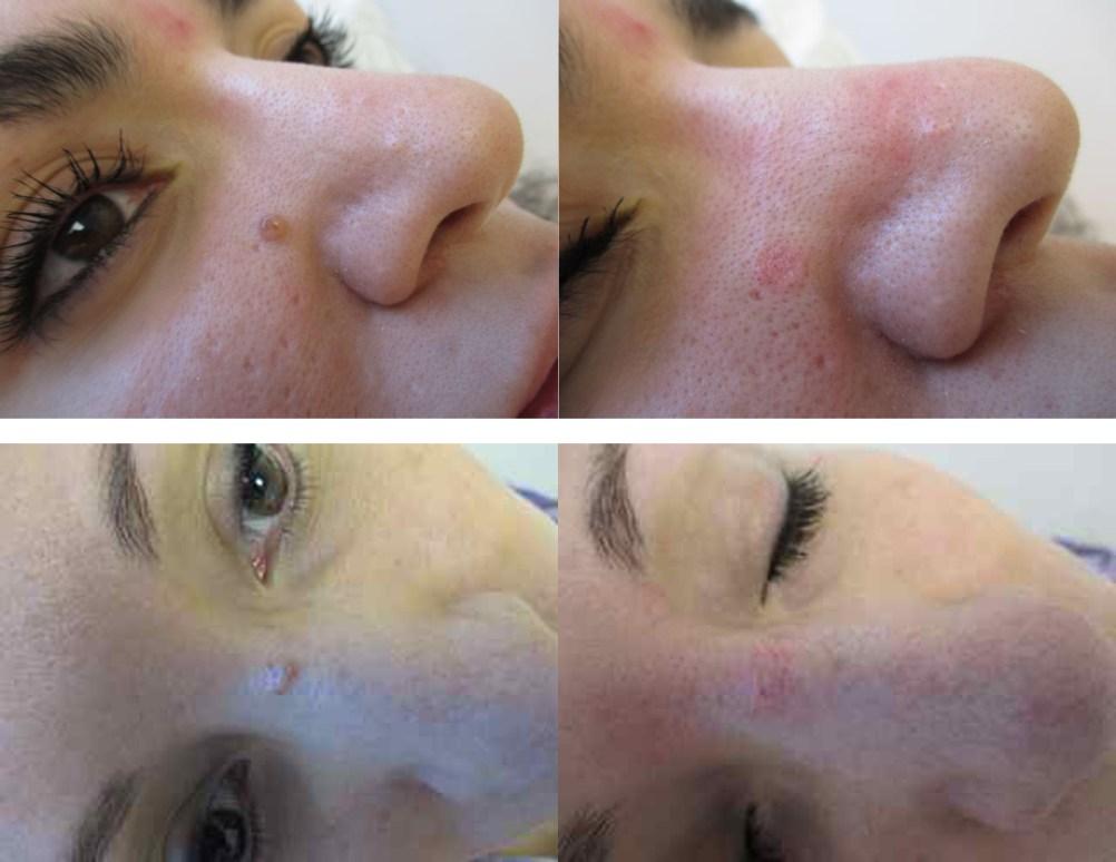 Mole removal at TDC - Toronto Dermatology Centre