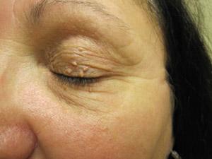 mole removal toronto skin tag removal