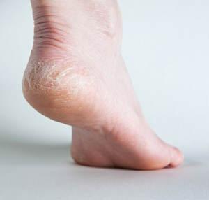 dry_feet_sole_01