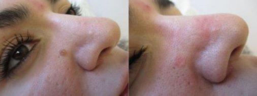 Mole Treatment Toronto | Specializing in Mole Removal