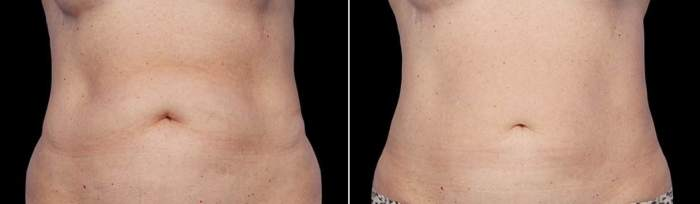 photos of CoolSculpting of woman's stomach area