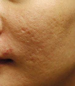 acne-scar-treatment-before-left-side