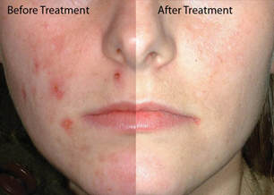 acne-before-and-after