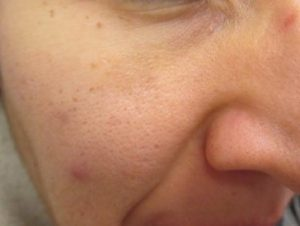Facial age spot removal understand you