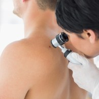 doctor examining mole on back of patient in clinic