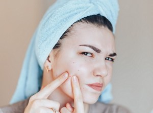 Teenage girl squeezing her pimples, removing pimple from her face.