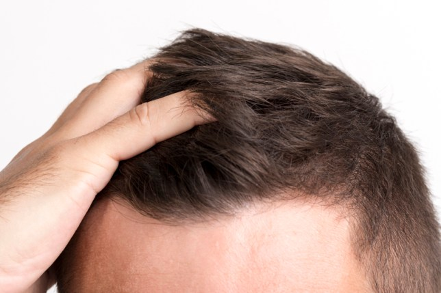 male combing hair with finger