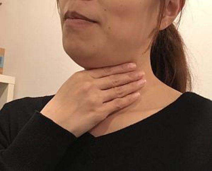 咽喉頭異常感症に悩む女性の写真