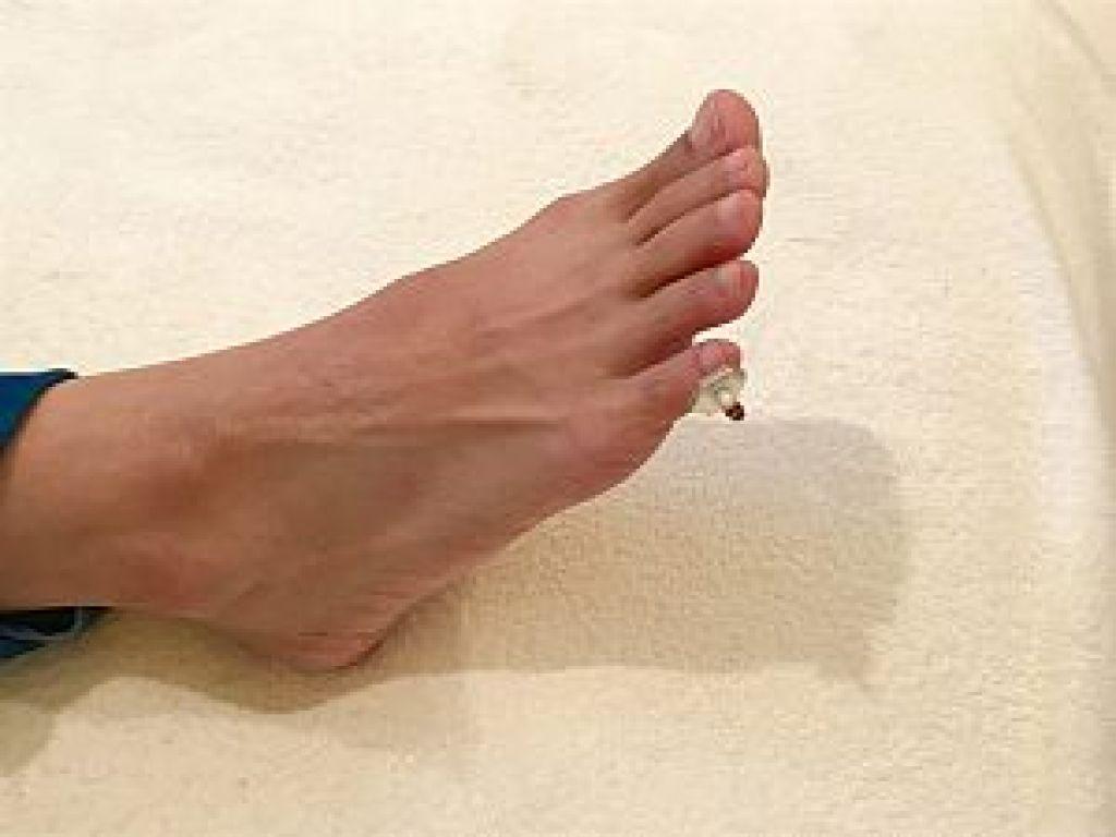 逆子のツボ 至陰へのお灸の写真