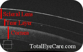 OCT Scleral Lens