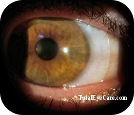 Scleral lens