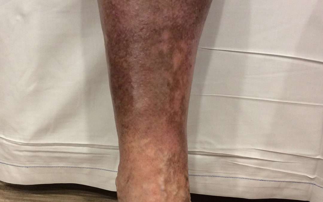 Lower Leg Discoloration: What Does It Mean? | Totality