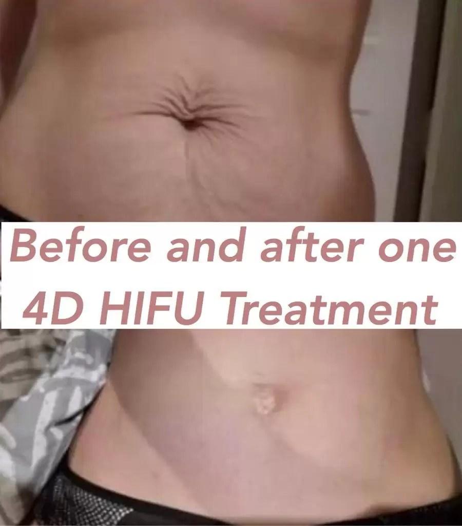 4d hifu body