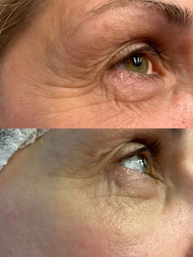 before and after eye area 4d hifu