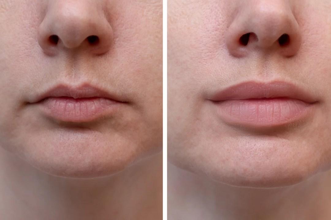 radio frequency skin tightening lip plumping