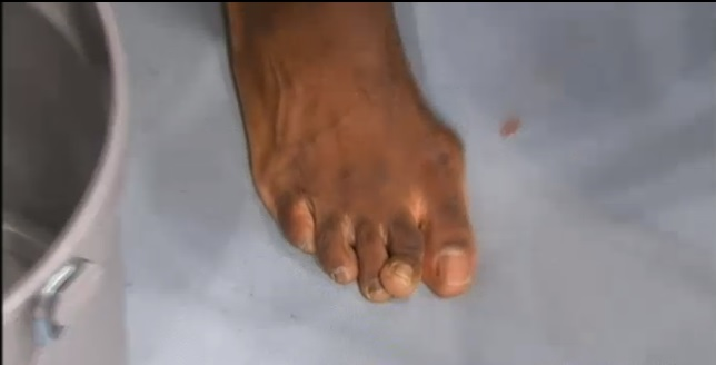 uriah hall broken toe 1