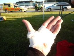 TOUGHEST 24H XTREME 2015, Bandage links