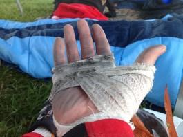 TOUGHEST 24H XTREME 2015, Bandage rechts nach dem Rennen