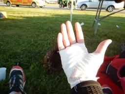 TOUGHEST 24H XTREME 2015, Bandage rechts