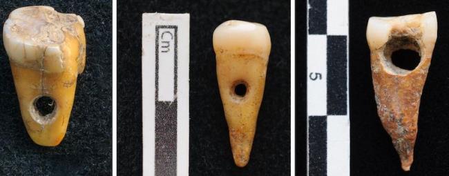 Jewelry Made of Human Teeth in Catalhoyuk