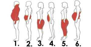 Du nouveau sur L'obésité (les 6 formes, causes et traitements)-1