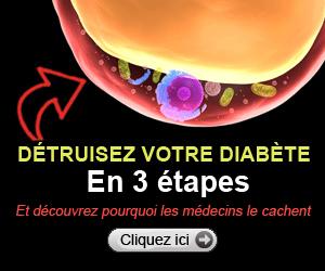 Dr.Roy Taylor Ce régime extrême a inversé le diabète de type 2 chez 86% des patients