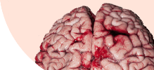 /assets_page/db1061719088ca3c2dcd8661f92cbf9595be4f52/brain.png