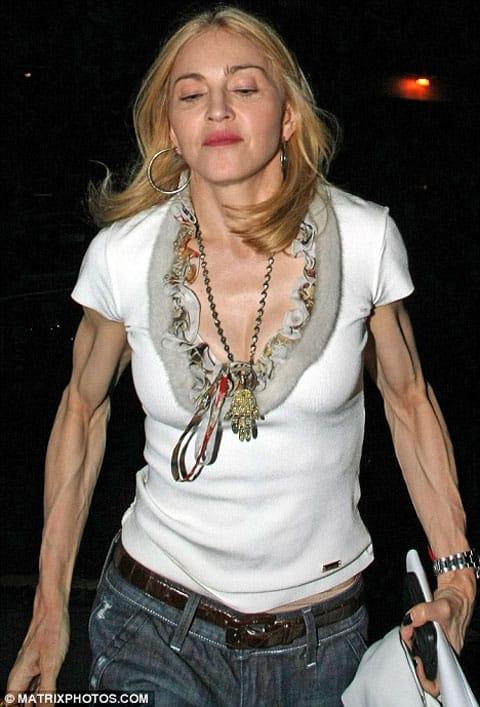 Madonnaarms
