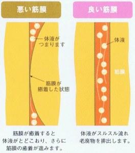 筋膜の癒着