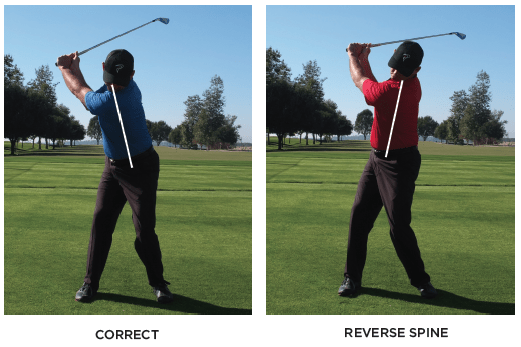 Reverse Spine Angle