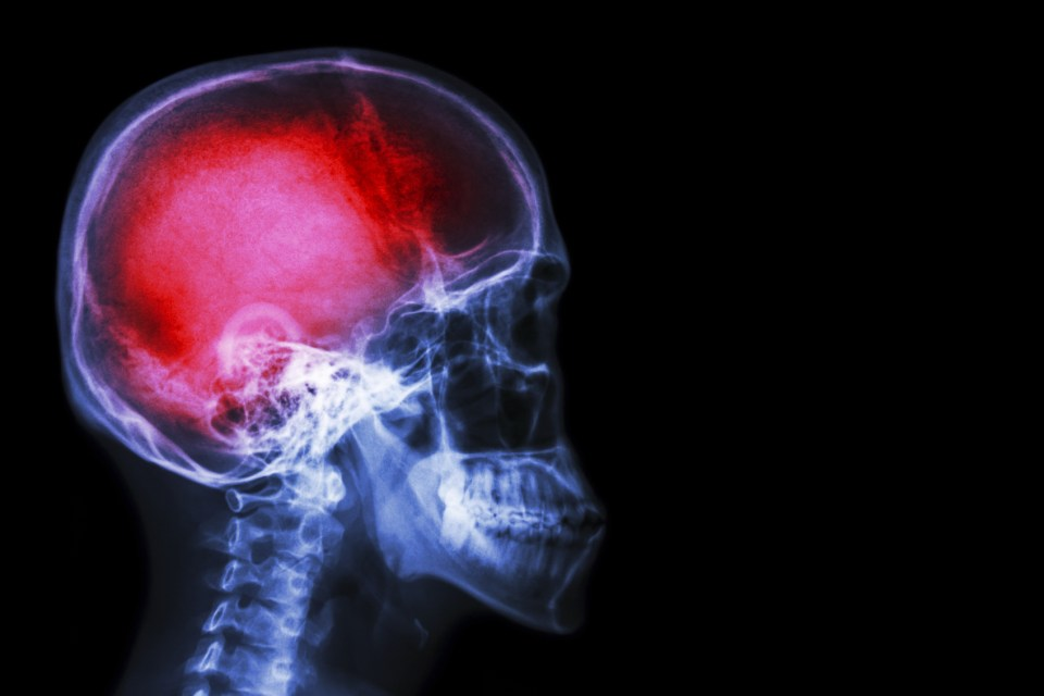 """X-ray skull & cervical spine (lateral) with """"Stroke"""""""