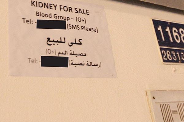 Kidneys on sale for 39000 in Bahrain
