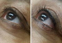 Birmingham Permanent Eyeliner