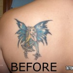 Birmingham Tattoo Removal Services